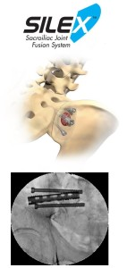 Sacroiliac fixation with Silex