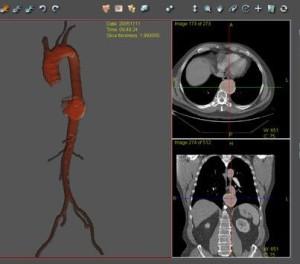 Simbionix TEVAR simulator