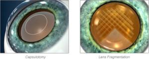 Lens Fragmentation