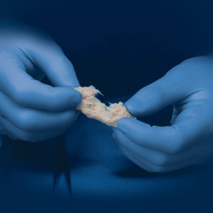 TrinityElite moldable bone graft
