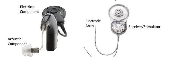 Cochlear Nucleus Hybrid Implant