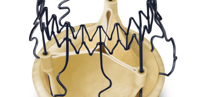 Trials and Economics Support Sorin's Perceval Sutureless Valve