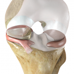 U.S. May Soon Have First Meniscus Implant