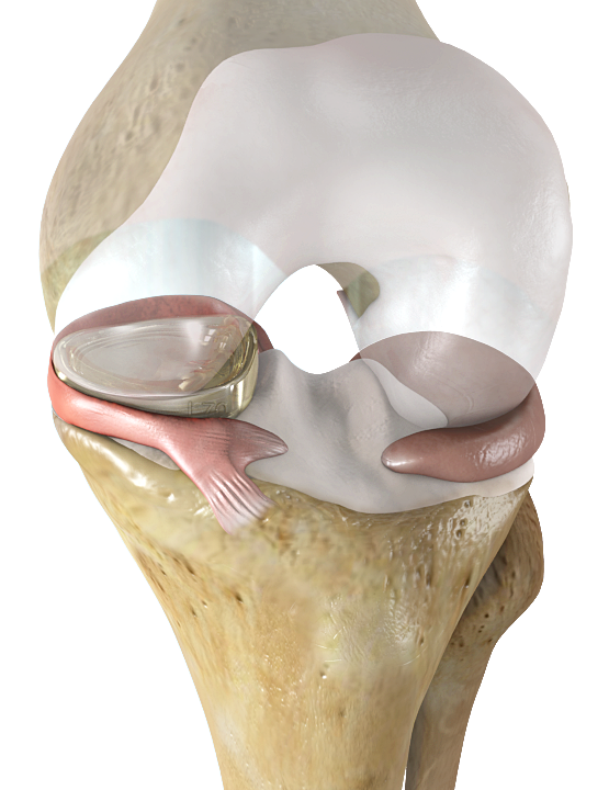 U S  May Soon Have First Meniscus Implant | Medlatest