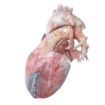 Revivent TC Less Invasive Ventricular Enhancement Therapy CE Mark Extended to 2024