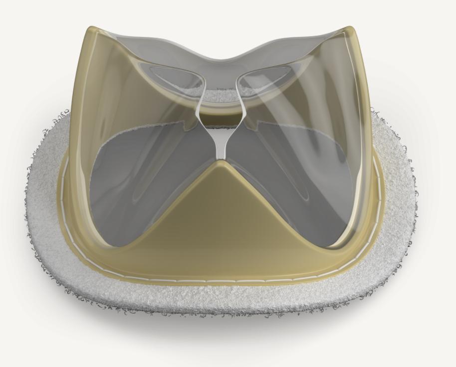 Novel Tria aortic heart valve